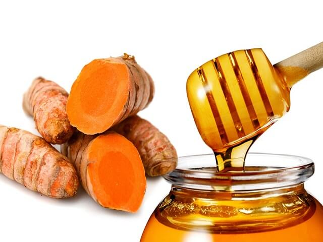 trị mụn ẩn bằng nghệ và mật ong